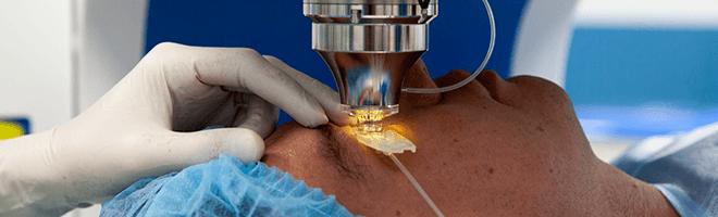 Эксимер офтальмологическая клиника в спб