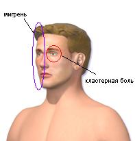 Болит голова с правой стороны